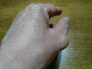 母指MP関節症