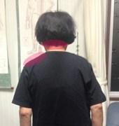 肩こりと頭痛の症例