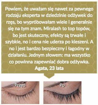 miralash-op5