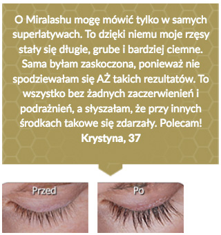 miralash-op6