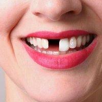 Najlepszy preparat wybielający zęby