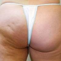Cellulit i mezoterapia