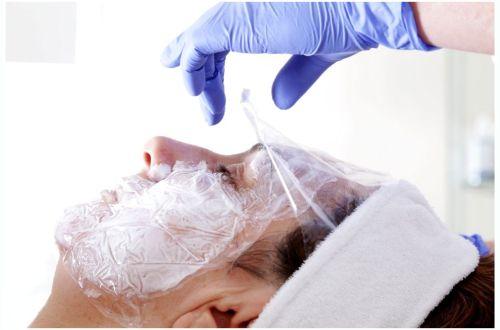 Mezoterapia igłowa twarzy