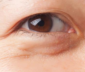 美容皮膚科領域の施術で改善する軽い目の下のたるみの画像