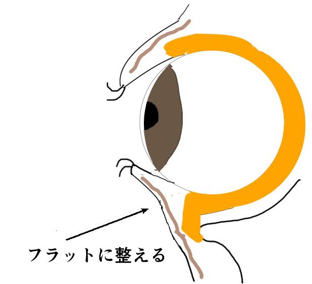 眼窩脂肪ヘルニアのハムラ法の説明画像
