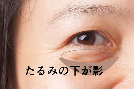 目の下のたるみの画像