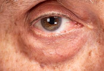 重度の眼窩脂肪ヘルニアの画像