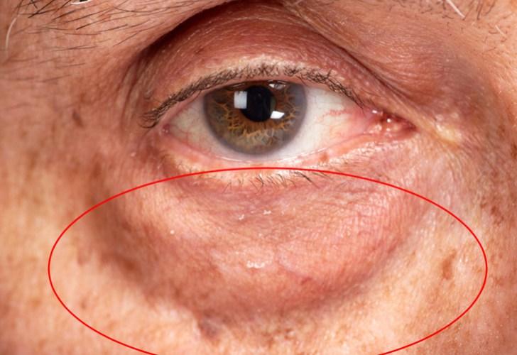 眼窩脂肪を自力で解消説明画像