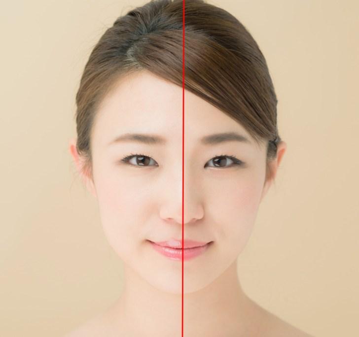 顔の片側のたるみの調べ方の画像