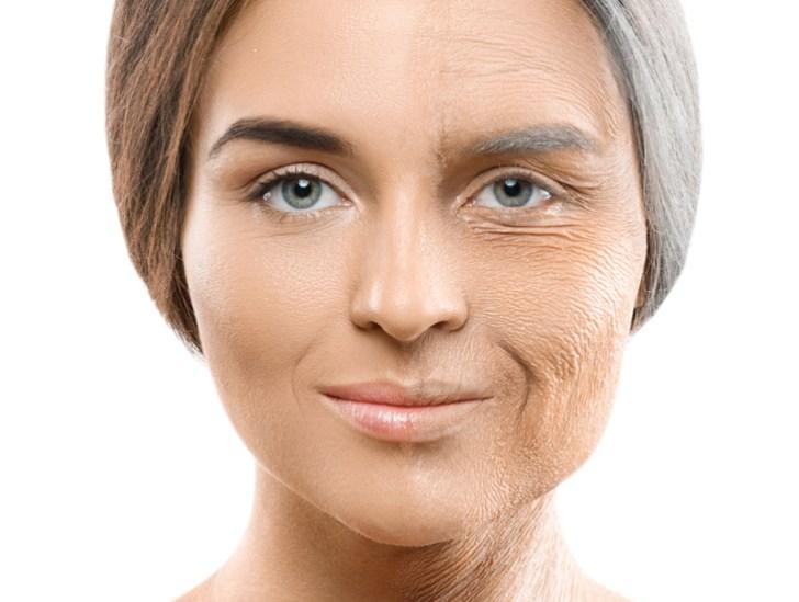 肌に潤いがない女性の画像