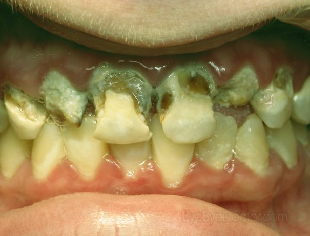 tooth-decay-4