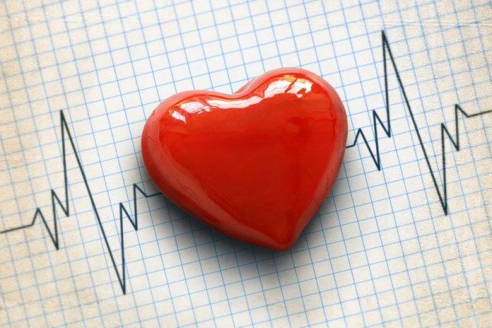 Cardiogram