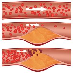 Non-HDL Cholesterol Levels + Blood Test + Ways to Reduce