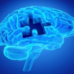 bigstock-dementia-disease-and-a-loss-of-79712317-min