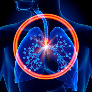 bigstock-lungs-foreign-object-inhaled-66734512-min