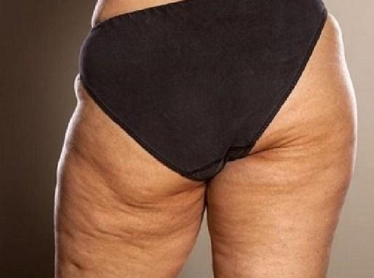 4 exercises to blast cellulite
