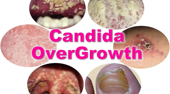 Candida Overgrowth