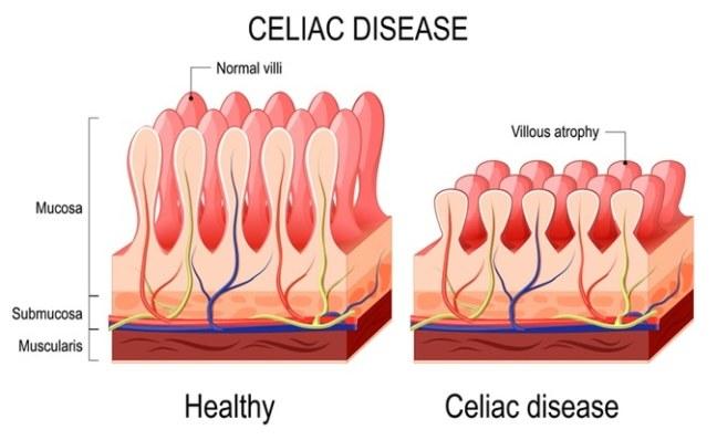 Mucosa Intestinal Doença Celíaca