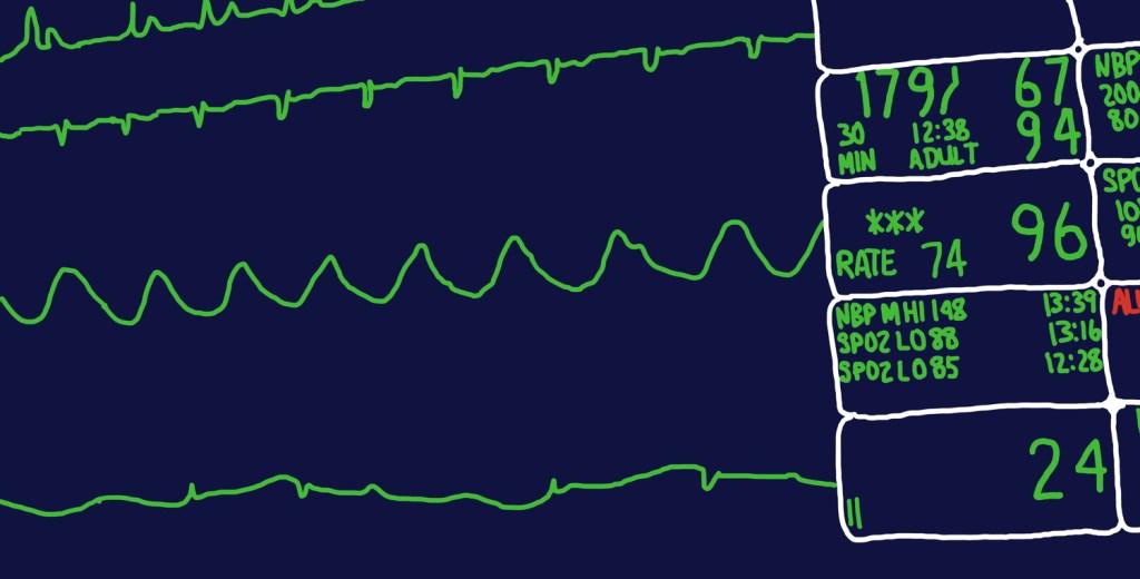 cardiac monitor drawing
