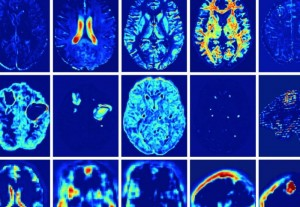 Engineers have developed a computer program that mimics how doctors assess patient scans to determine signs of traumatic brain injury. (Source: Imperial College London)