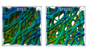 A cancer cell under the microscope: The STED image (left) has a background of low resolution. In the STEDD image (right), background suppression results in much better visible structures. (Image: APH/KIT)
