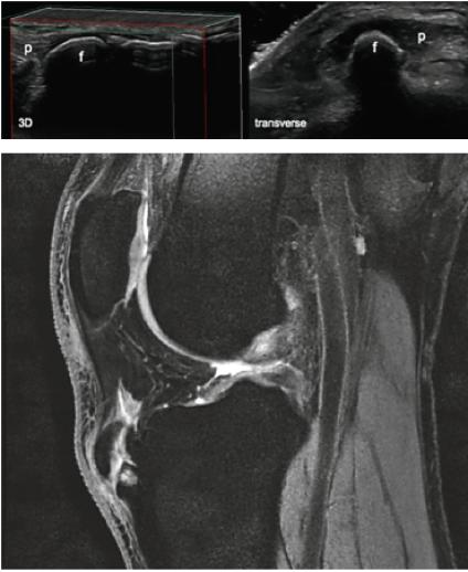 MRI Knie sagittal 2