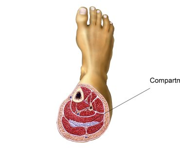 Chronic Exertional Compartment Syndrome in Athletes: A narrative Review