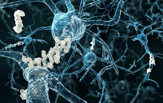 alzheimers-neurons-bredesen -reserach