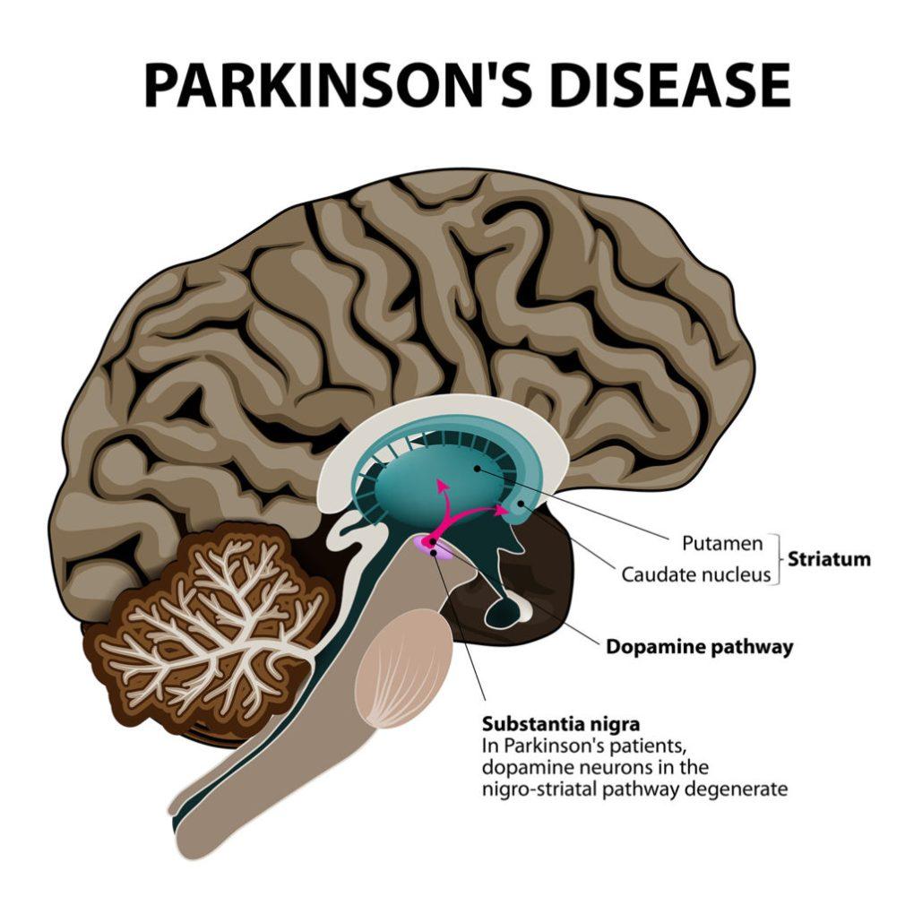 Cannabis and Parkinson's disease
