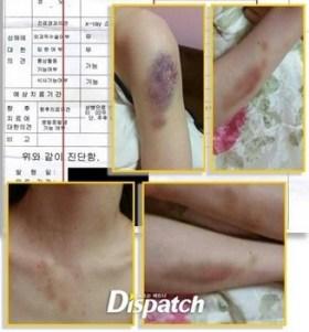20140827_seoulbeats_kimhyunjoong_a_injuries_triggerwarning_dispatch