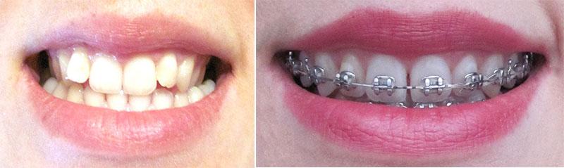 aparat-dentar-inainte-dupa-18-luni