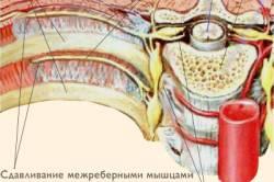 nyaki osteochondrozis gyógyszereinek komplexe