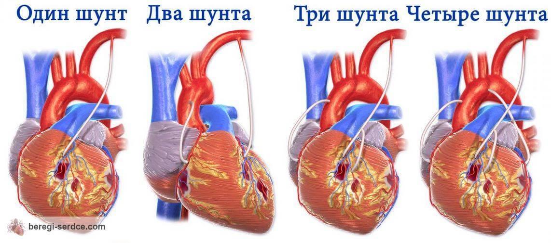 Можно ли летать на самолете после инфаркта и шунтирования