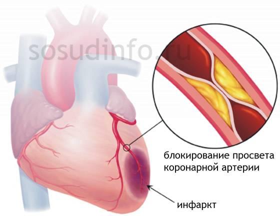 Диспансеризация инфаркта миокарда