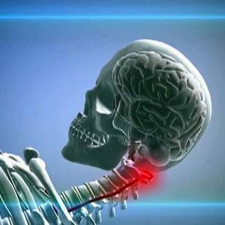 Экстравазальная компрессия левой позвоночной артерии