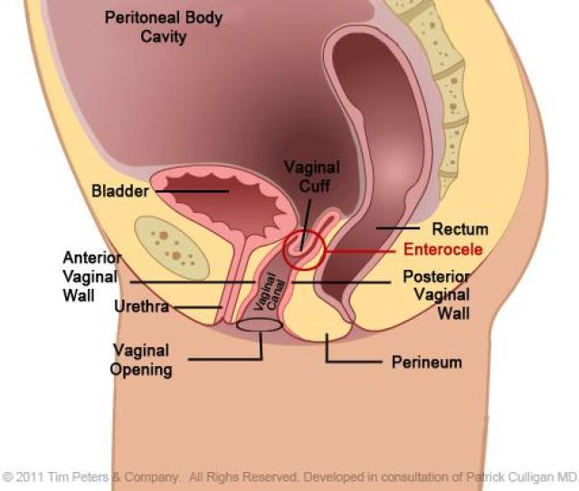 Prp Is Injected Into The Clitoris And The O Spot In The Upper Vagina The Entire Process Takes About  Minutes
