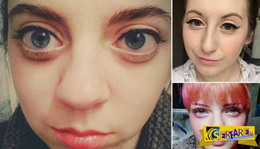 Η νέα μόδα στις γυναίκες για μεγάλα μάτια – Το ειδικό μακιγιάζ και οι ενέσεις …