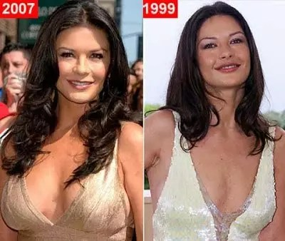catherine zeta jones plastic surgery