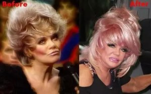 jan crouch facelift