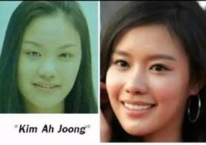 kim ah joong facelift