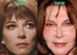lee grant plastic surgery