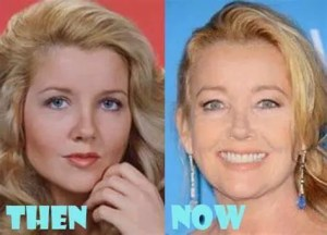 melody thomas scott plastic surgery