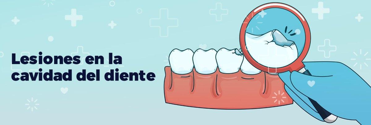 lesiones en la cavidad del diente