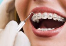 5 Kesalahan Memakai Kawat Gigi yang Sering Dilakukan