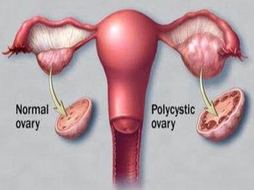ovare polichistice