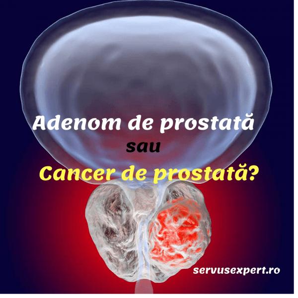 adenom de prostata analize