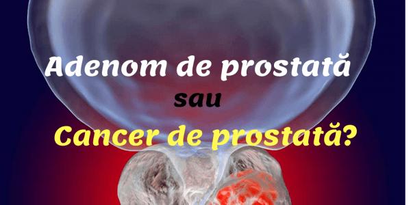 Despre adenomul de prostată