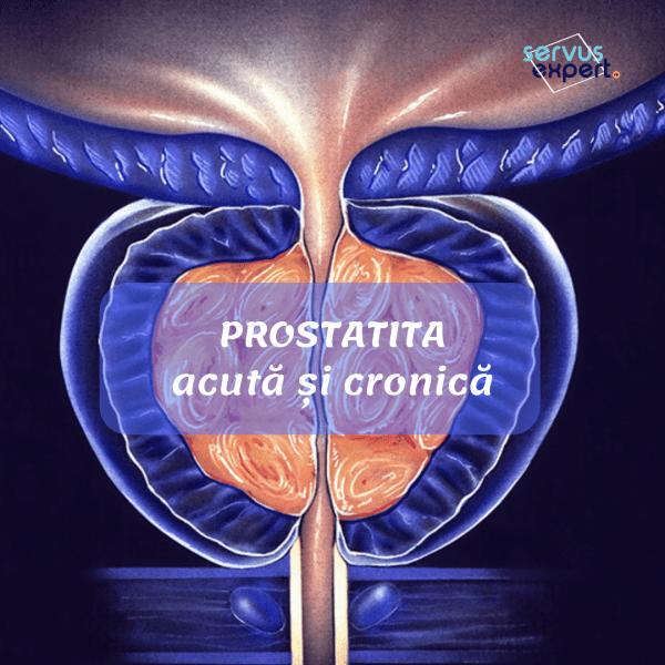 Inflamația prostatei, HBP