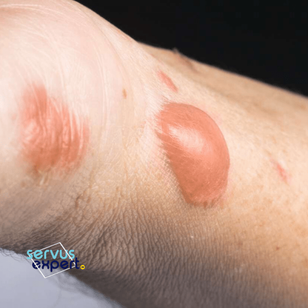 arsuri ale pielii: cum prevenim infecția?
