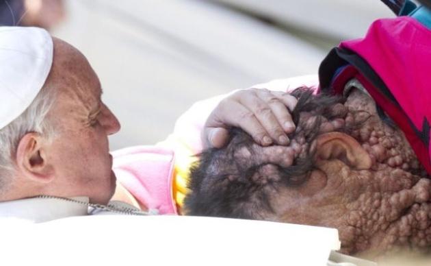 Papież obejmuje człowieka o zdeformowanej twarzy